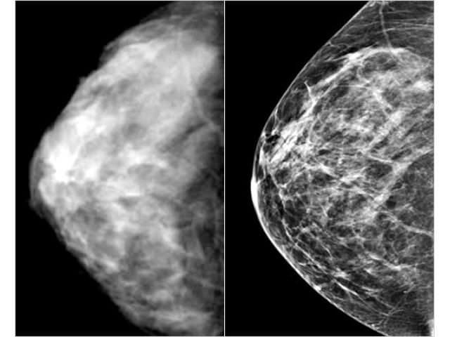 знімки мамографія
