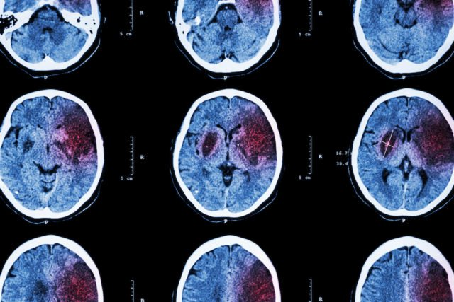 знімкі мозком