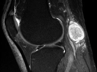 знімок кістозної капсули колена