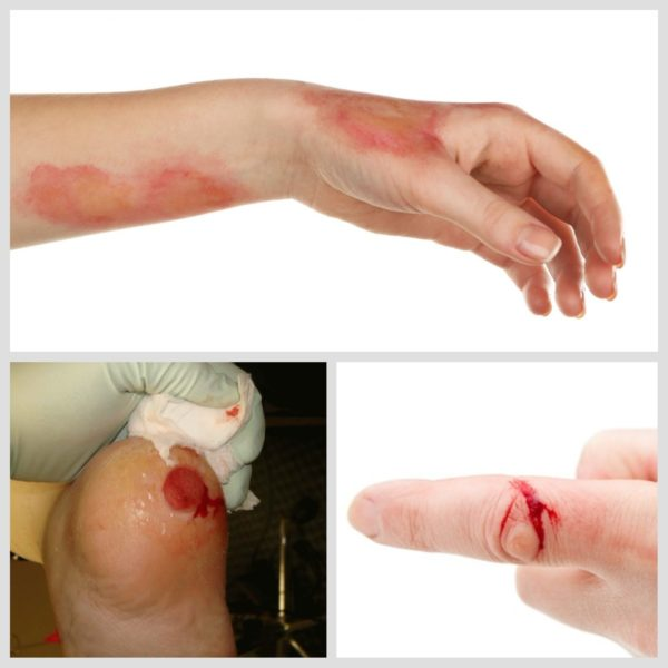 солкосерил інструкція гель для нанесення на мокнучі рани