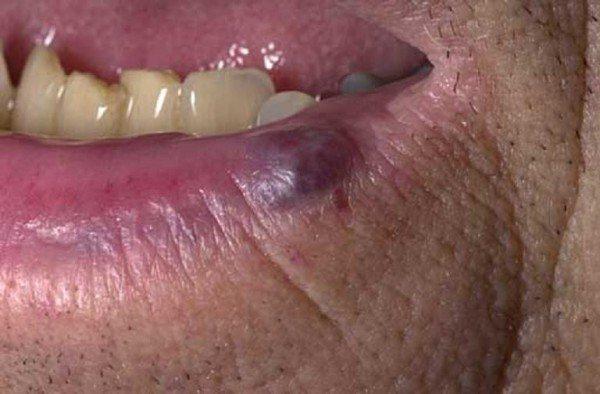 Судинна гемангіома на губі