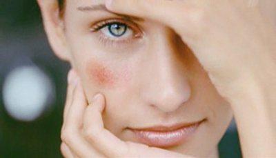 Судинні зірочки на тілі (обличчі, грудях, кінцівках): причини і лікування