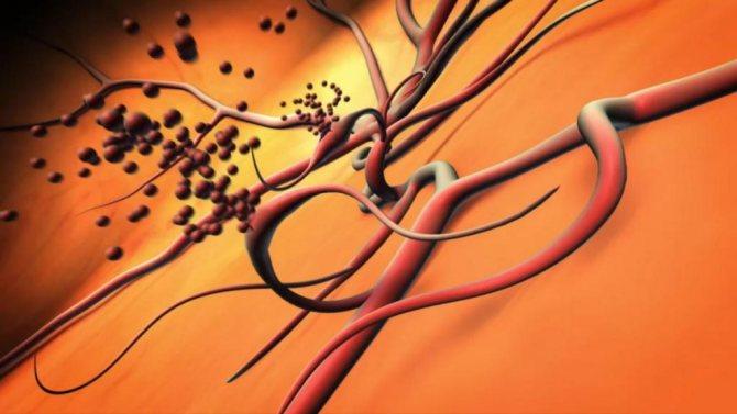 Судини при діабетичної ретінопатії