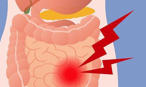 спазми кишечника