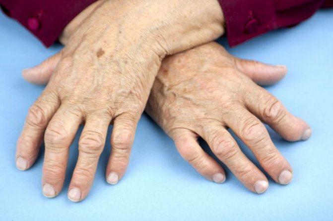 Фахівці виділяють 4 стадії патології