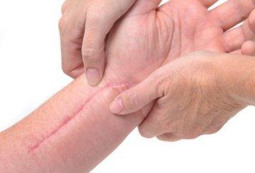 Сприяє усуненню шрамів і рубців