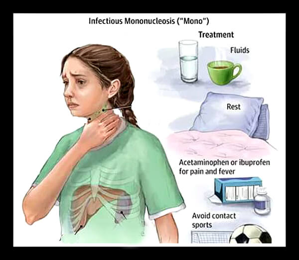 Способи лікування мононуклеозу