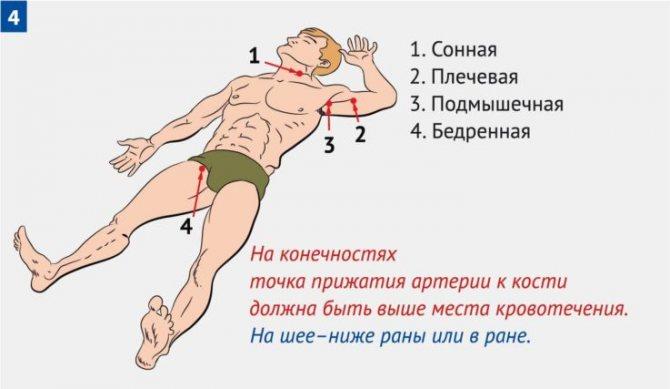 Способи зупинки кровотечі