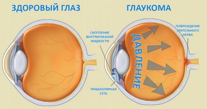 порівняння здорового очі и хворого глаукомою