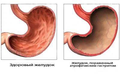 Порівняння здорового шлунка і ураженого атрофічним гастритом
