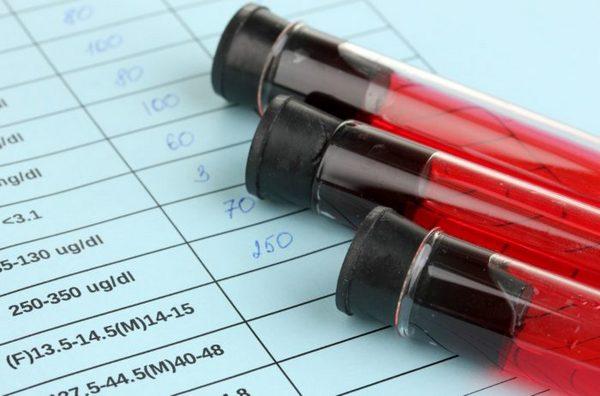 СРБ в крови - що це таке: розшифровка показніків
