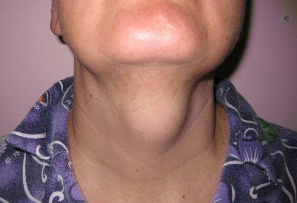 серединна кіста шиї у дитини лікування без операції