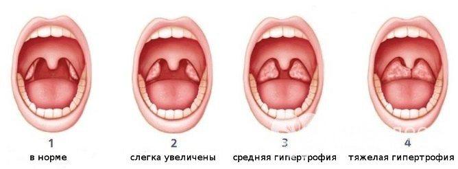 стадії аденоидита