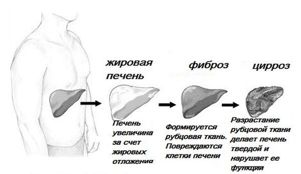 стадії цирозу печінки