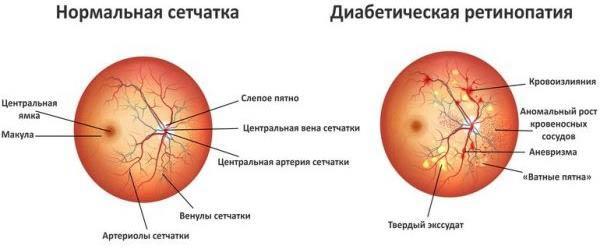 стадії діабетичної ретінопатії