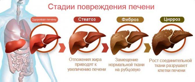 стадії гепатоза