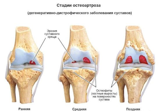 стадії остеоартрозу