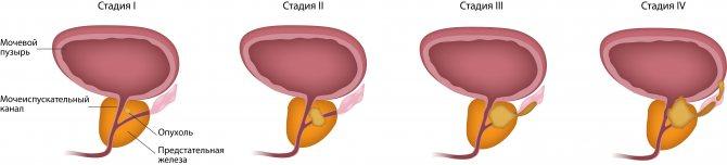 Стадії раку передміхурової залози