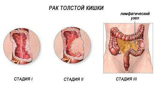 Стадії раку товстої кишки