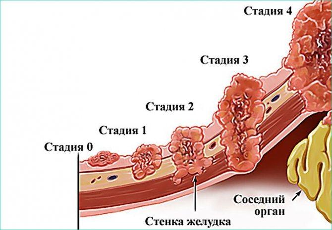 Стадії раку шлунка