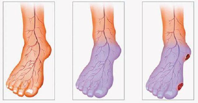 стадії розвитку атеросклерозу ніжніх кінцівок