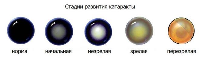 стадії розвитку катаракти