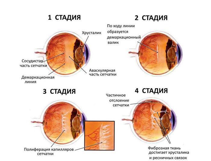 стадії ретинопатії
