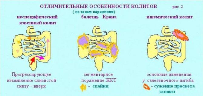 стадії спастичного коліту