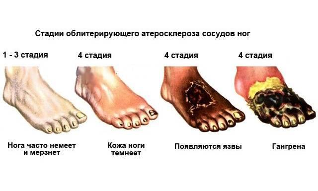 Стадії стенозу артерій ніг, симптоми и прояви