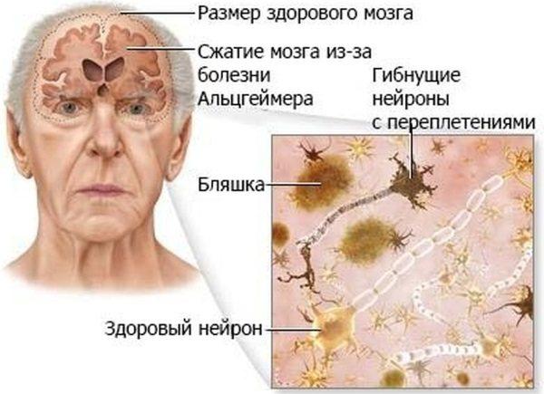 Старече недоумство. Симптоми і ознаки у жінок, лікування деменції, препарати, догляд