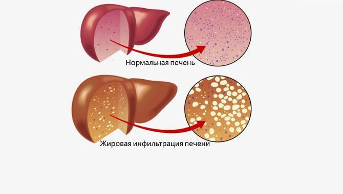 стеатогепатоз