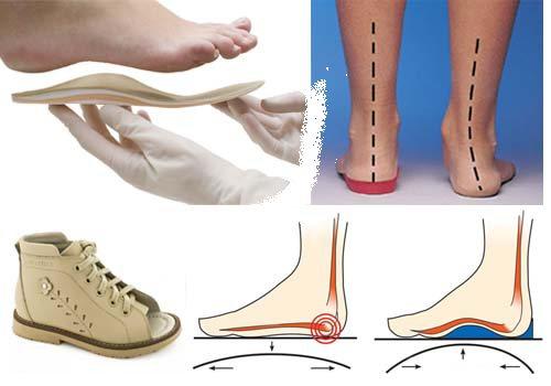 Устілкі ортопедичні и ноги