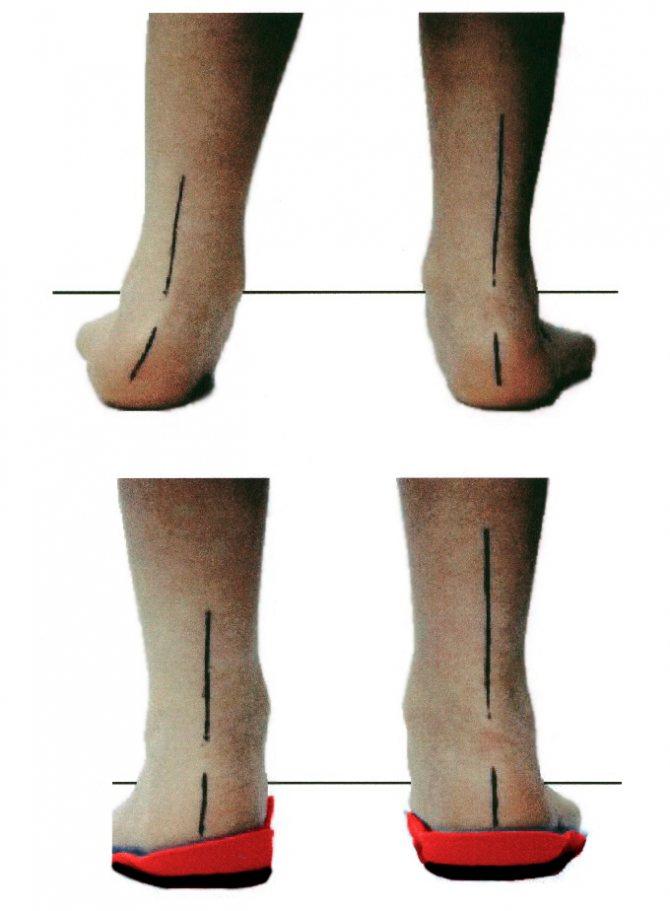 устілкі -профілактіка вальгуса