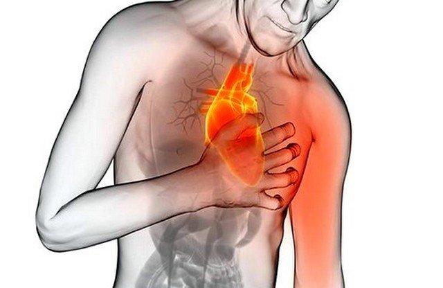 Стенокардія приносити хворому много дискомфорту, оскількі Йому доводиться відчуваті Сильні болі як в серце, так и в області лопаток