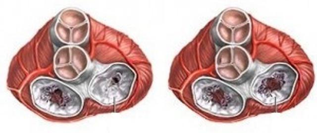 стеноз аортального отвору