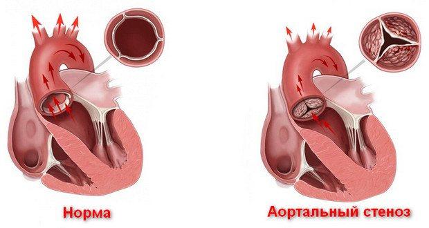 стеноз аорти що це таке