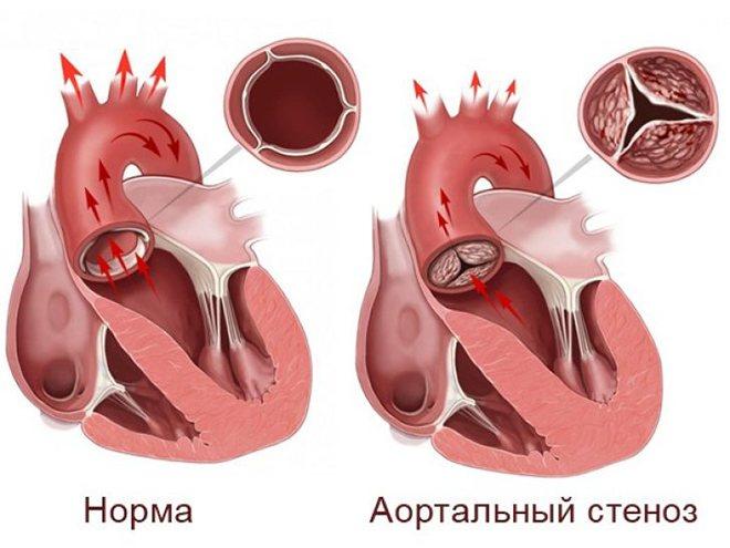 Ступенів аортальної недостатності