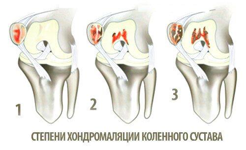 Ступені хондромаляція колінного суглобу
