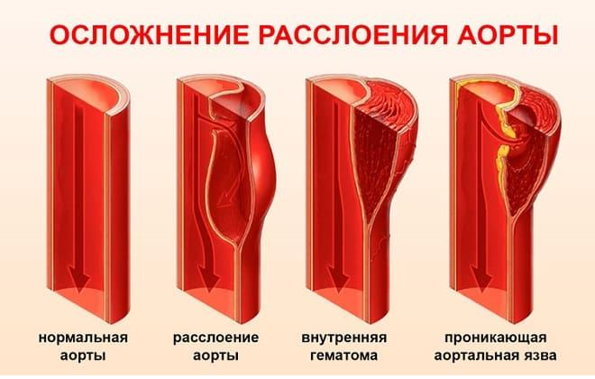 Ступеня розшарування аорти