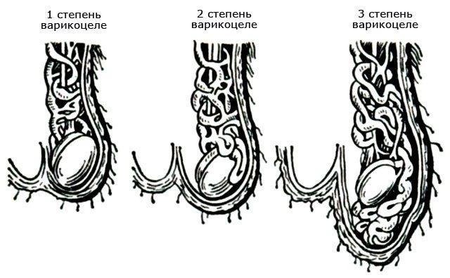 ступенів варикоцеле