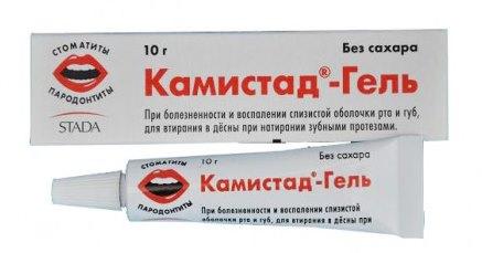 Стоматит в роті у дорослих. Список дієвих препаратів для швидкого лікування