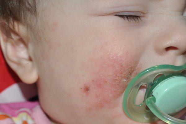 Стрептодермія у дітей: фото, симптоми, причини, лікування