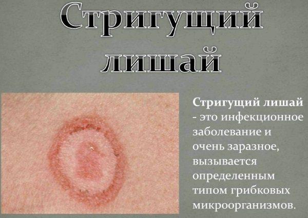 Стригучий лишай у людини.  Фото, ознаки, стадії, лікування народними засобами, препарати