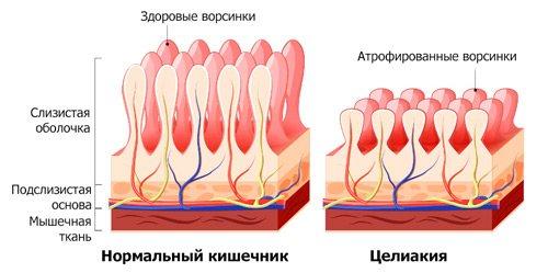 будову стінок здорового и хворого кишечника