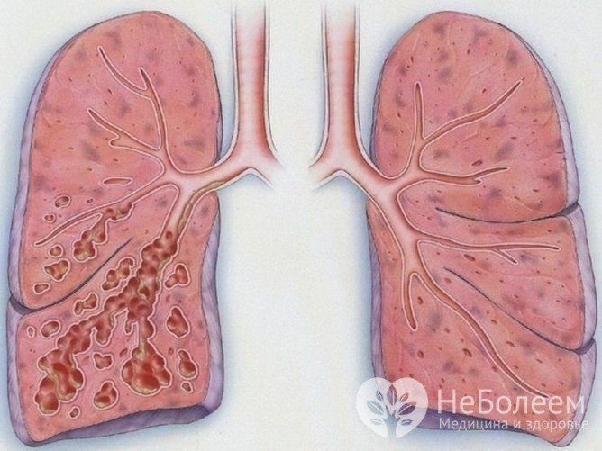 Структурні зміни в легенях при бронхоектактіческой хвороби