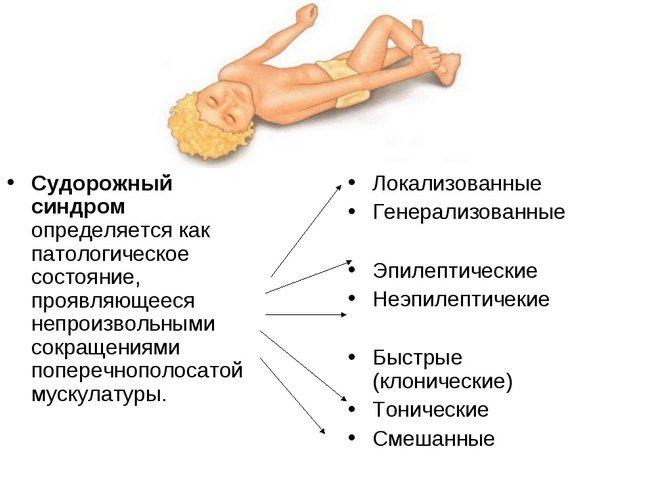 судомний синдром