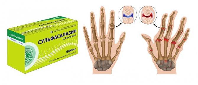 сульфасалазин при артриті