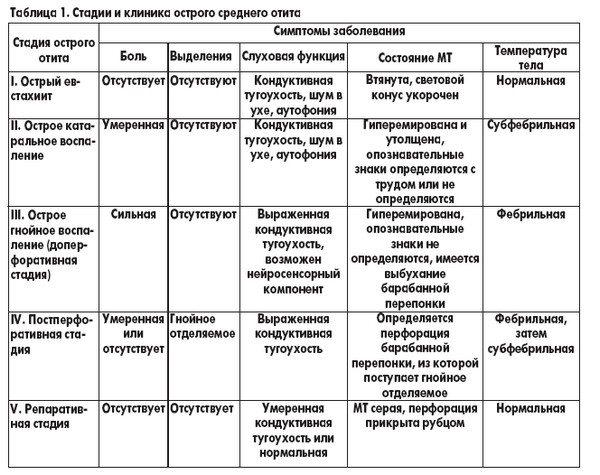 таблиця стадії гнійного отиту
