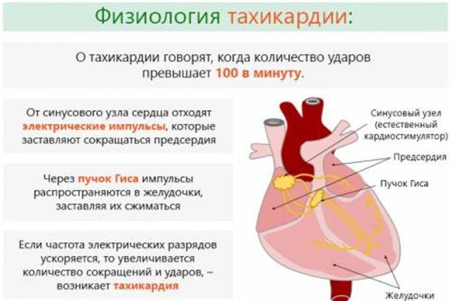 тахікардія