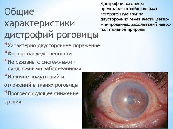 Тауфон очні краплі.  Інструкція по ЗАСТОСУВАННЯ, Користь и шкода, ціна, аналоги